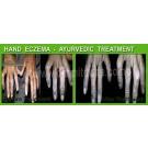 Hand Dermatitis Treatments- Ayurvedic Skin Specialist - Dr. Amit Dutta