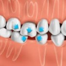 The Best Dental Implant Surgery in India | Dr. Bhalla - An Expert Dental Surgeon