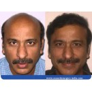 Affordable Hair Transplantation in Delhi
