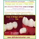 Best Zirconia Dental Crowns near Dilshad Garden East Delhi