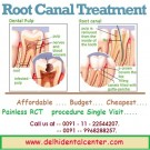 Root Canal Treatment in East Delhi India