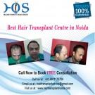 Expert of Hair Loss Treatment in Noida HOS